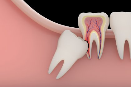 Wisdom Tooth Removal in Pimple Saudagar